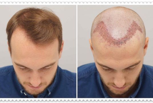 Saç Ekimi İle Doğal Saç Mümkün Mü?